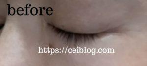 ナノアヒト幹細胞まつ毛美容液 SCアイラッシュセラム口コミレビュー