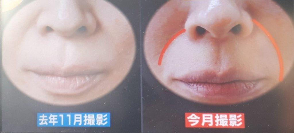 マスクほうれい線深くなる濃くなる